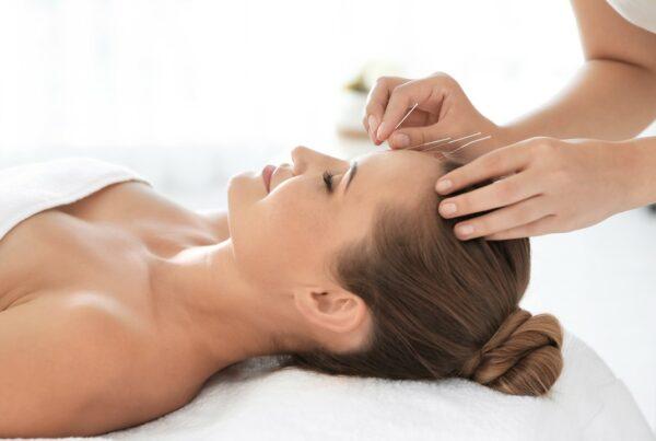 ¿Sirve la acupuntura para tratar la infertilidad?