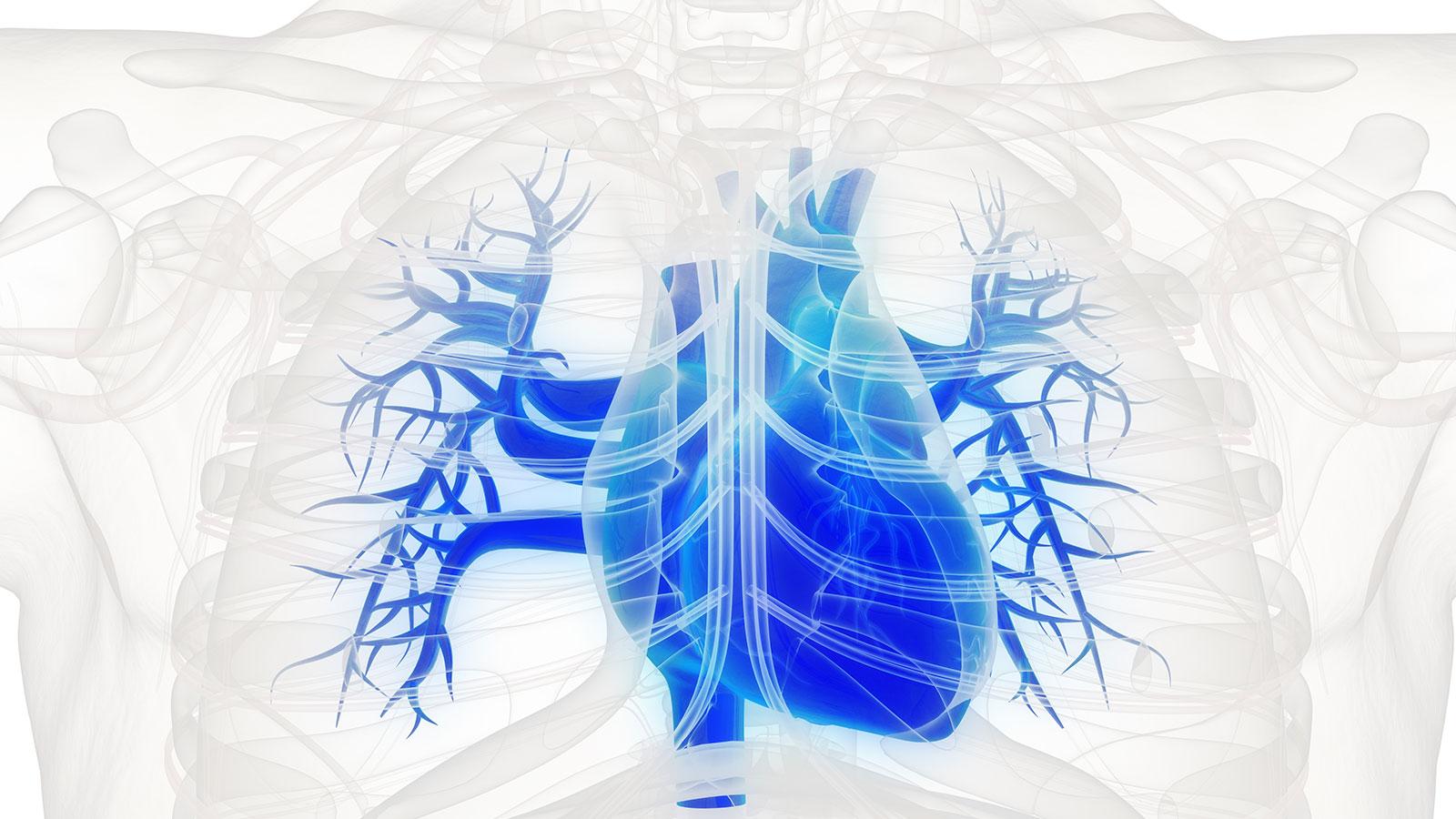 """La Angioplastia Coronaria con """"Stents"""""""