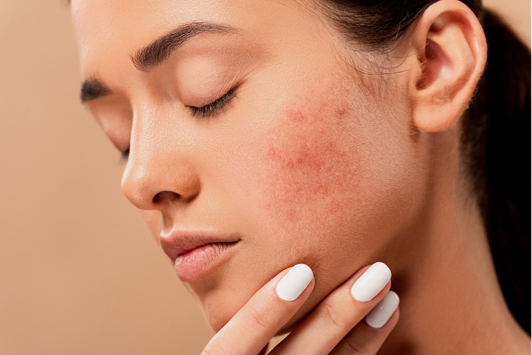 mitos sobre el acné