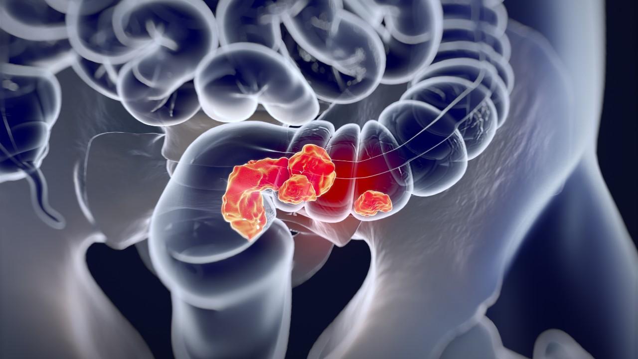 Examen de Mayo Clinic apunta hacia síndrome de Lynch, que es factor de riesgo para cáncer de colon