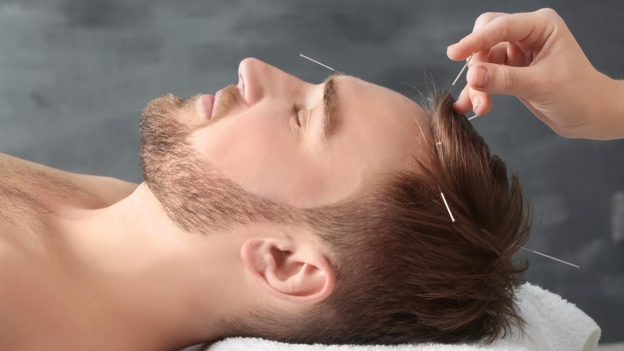 La acupuntura podría mejorar la memoria