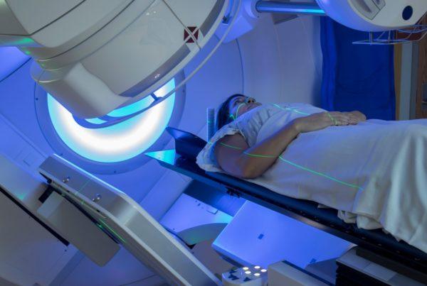 Qué hacer cuando la radioterapia causa daños en la piel