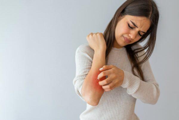 Si eres hipertensa podrías tener mayor riesgo de sufrir psoriasis