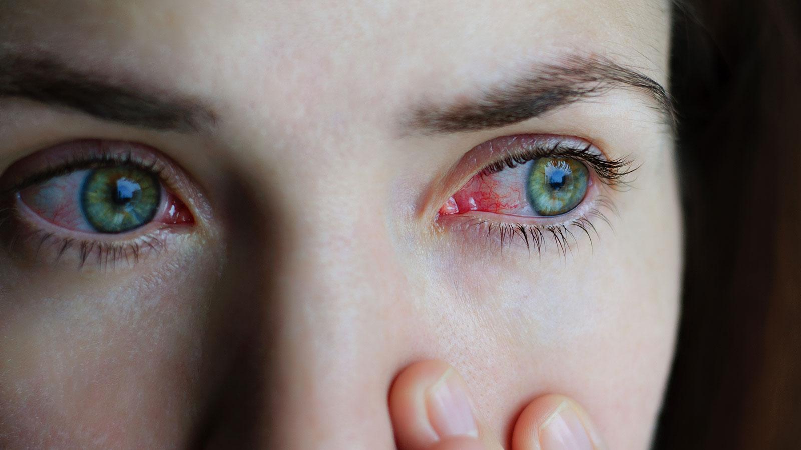 ¿Qué es la conjuntivitis u ojo rojo?