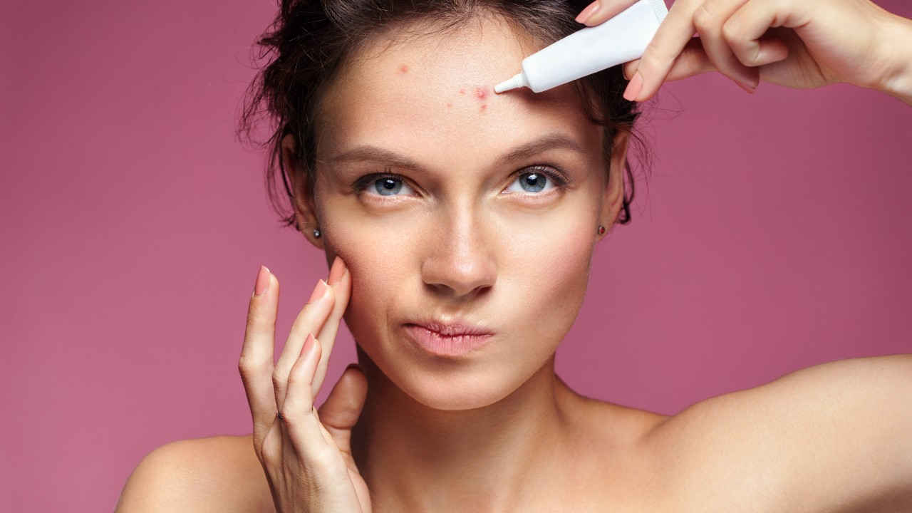 Acné: 10 recomendaciones y remedios caseros para controlarlo