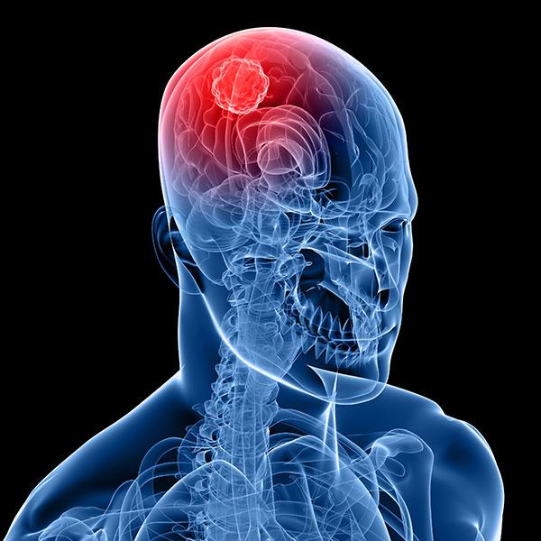 Cáncer cerebral: ¿qué es el cáncer en el cerebro y cómo se identifica?