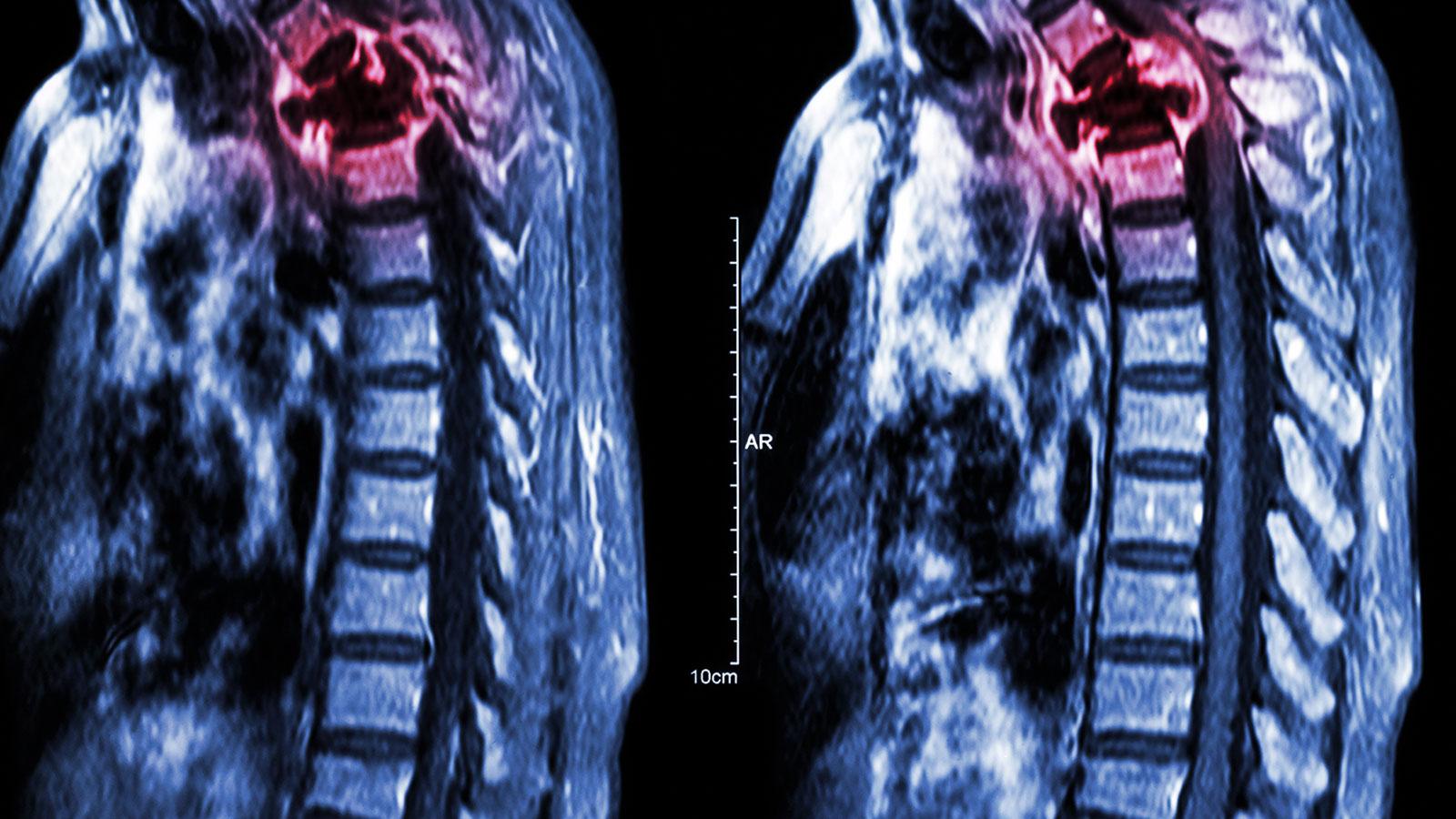 Cáncer en los huesos: ¿qué es y cómo detectarlo?