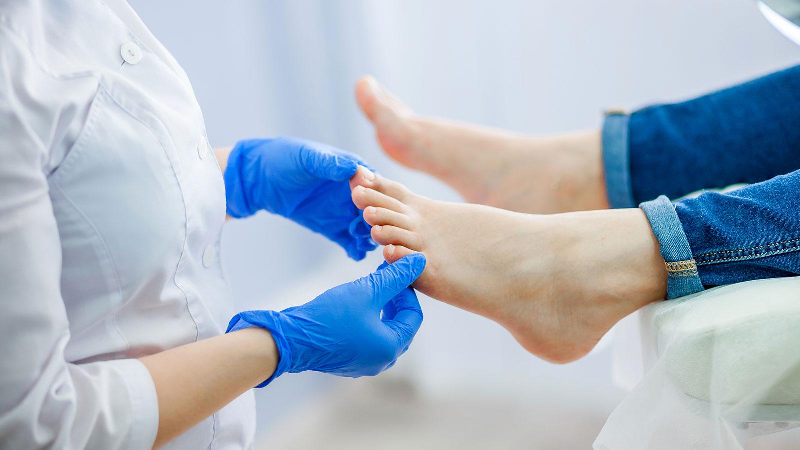Remedios caseros para eliminar los hongos en las uñas de los pies