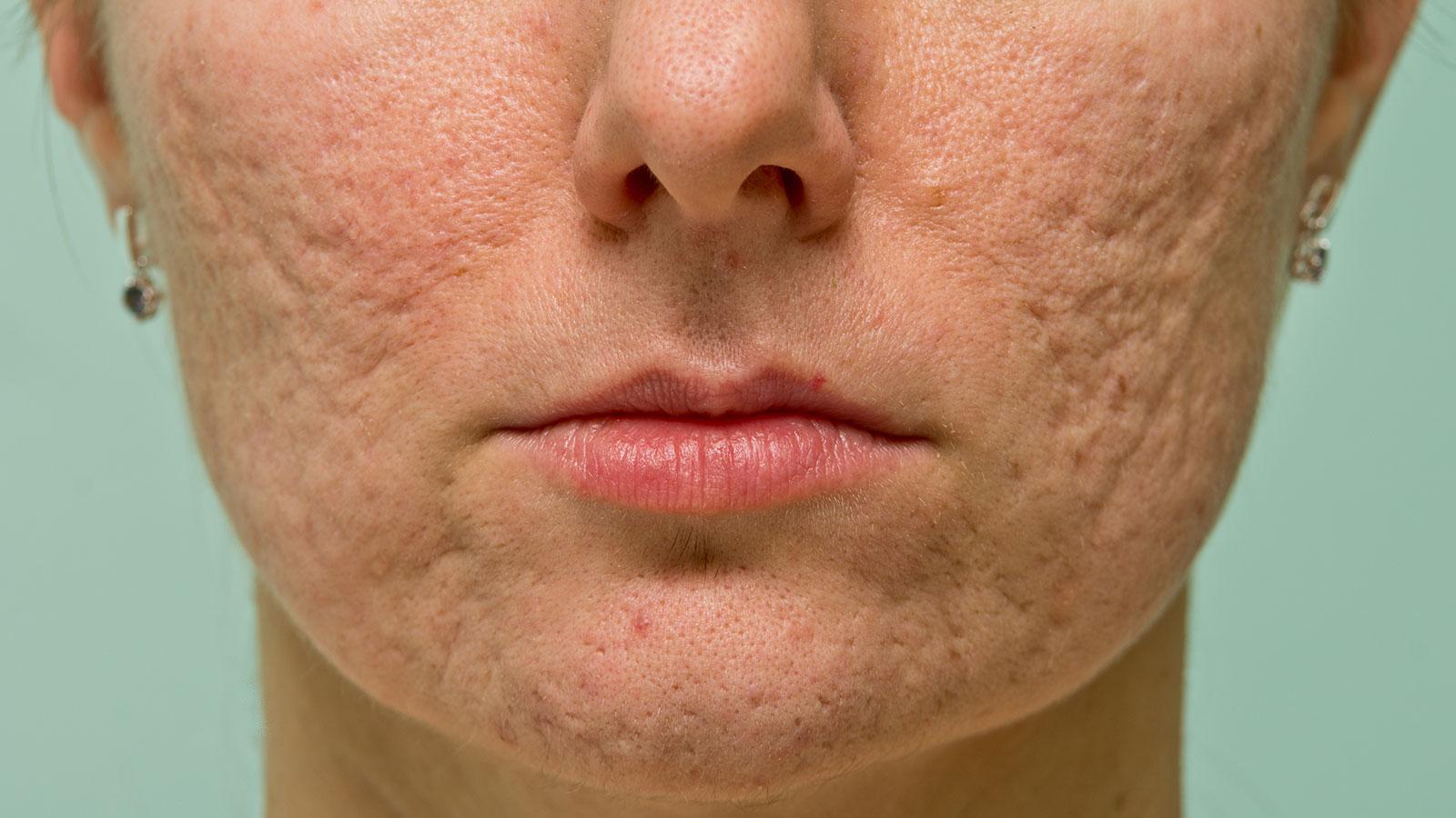 cicatrices-de-acné-en-mujer