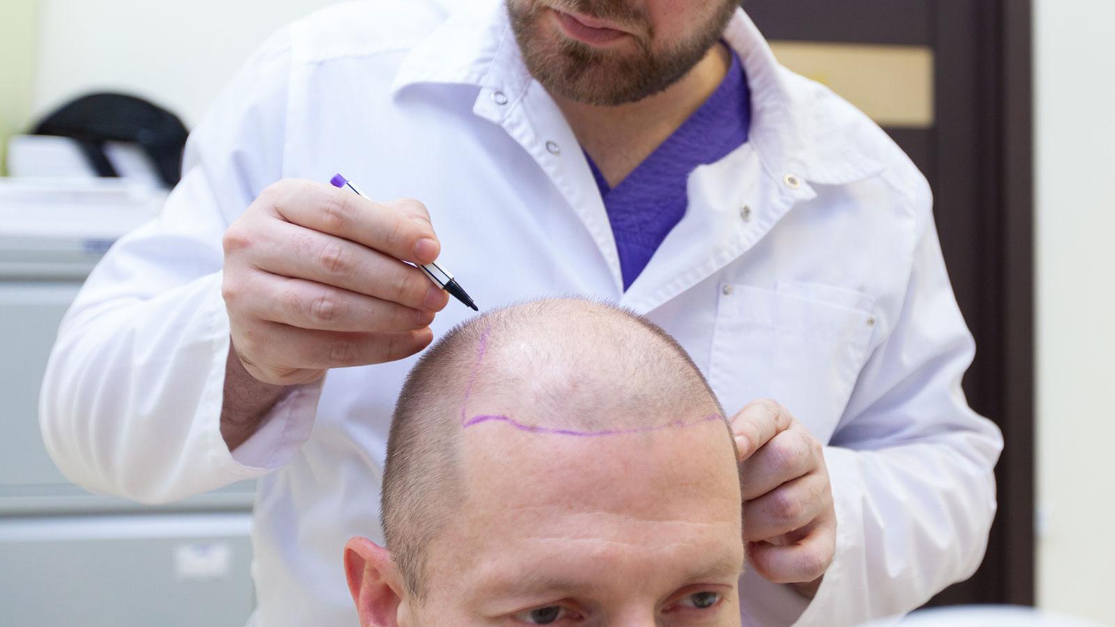 Trasplante de cabello vs Microinjerto de cabello