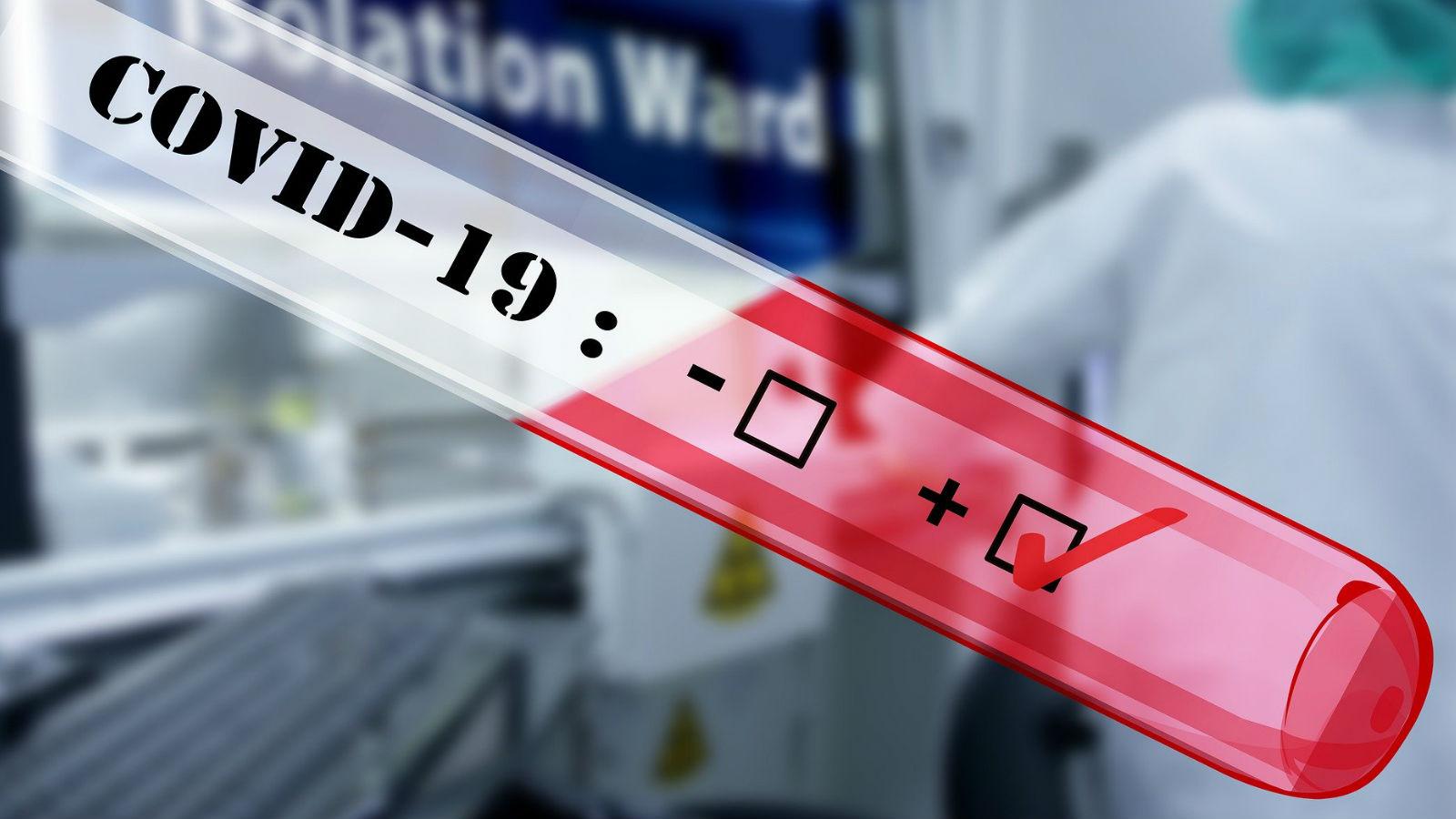 Más test móviles de coronavirus en el mundo
