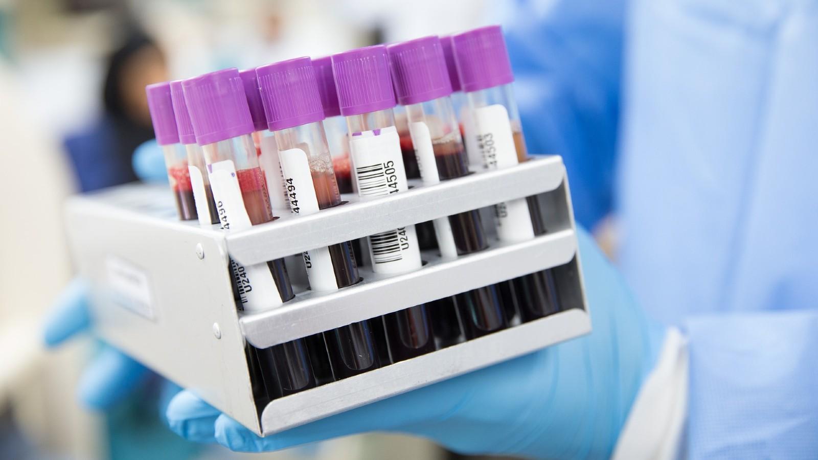 Uso de plasma para el coronavirus
