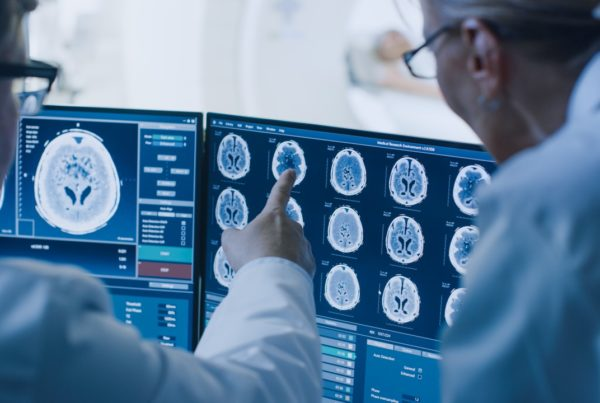 Daños neurológicos por Covid-19