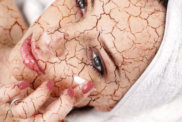 Piel seca: ¿conoces las causas de la resequedad de la piel?