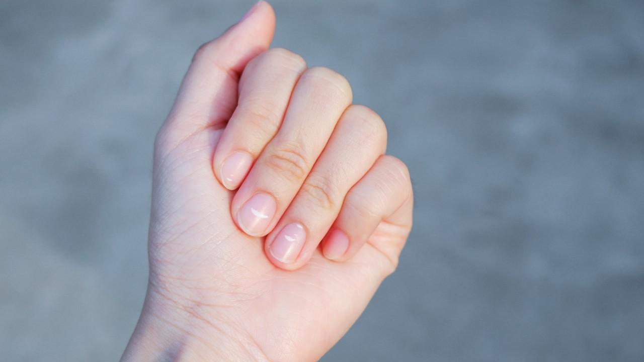 Recomendaciones para mejorar las uñas frágiles y quebradizas