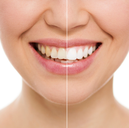 ¿Es posible que tu sonrisa recupere su blancura original?