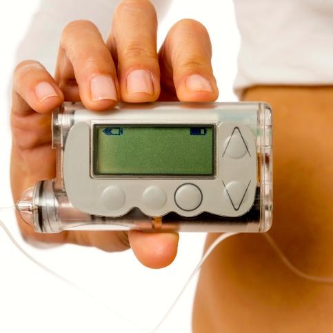 Ventajas y desventajas de la bomba de insulina