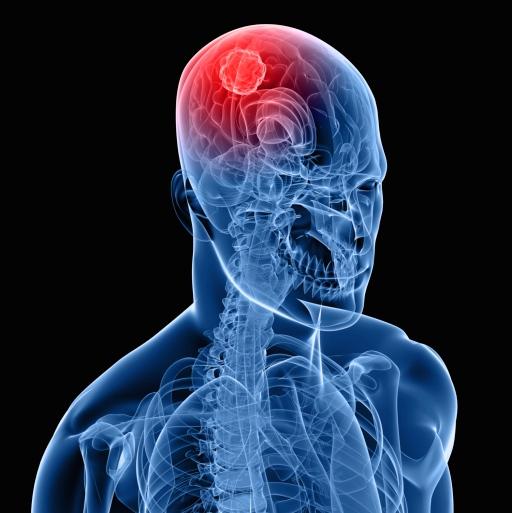 cáncer cerebral
