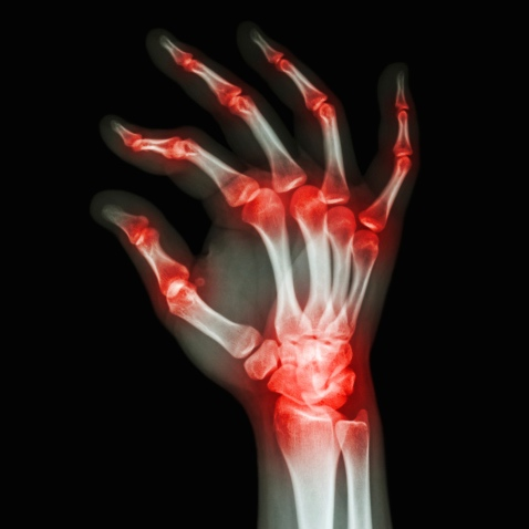 Cómo aliviar el dolor en las articulaciones durante el tratamiento del cáncer