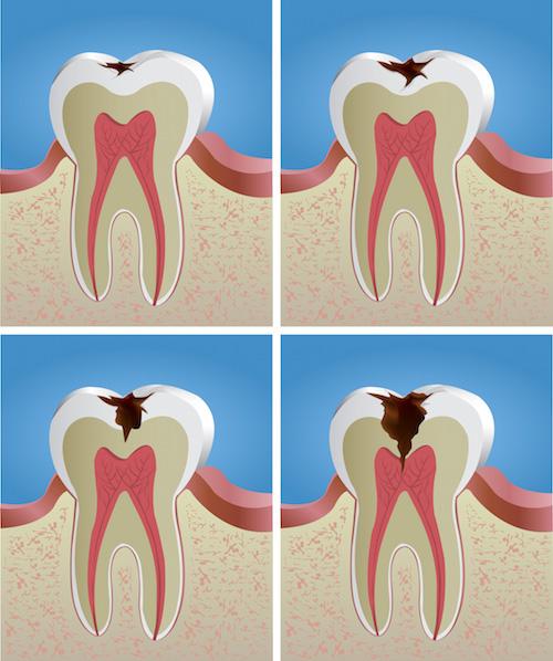 La caries dental – un enemigo silencioso