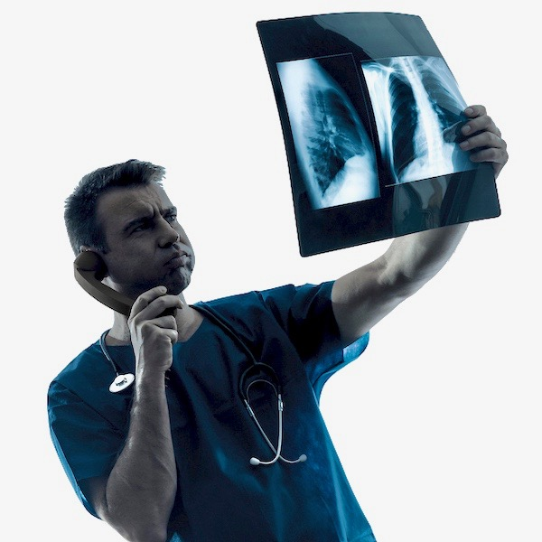 ¿Qué son los nódulos pulmonares? ¿Son cáncer?