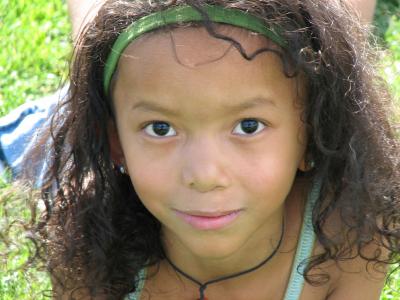 ¿Tu hijo tiene labio leporino? La cirugía temprana es la mejor solución