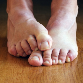Síntomas del síndrome de dolor pélvico