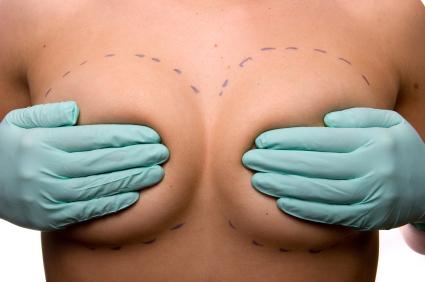 ¿Pueden los implantes del seno causar cáncer?