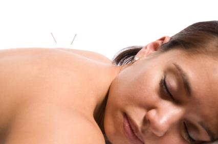La acupuntura: una alternativa para ayudarte a quedar embarazada
