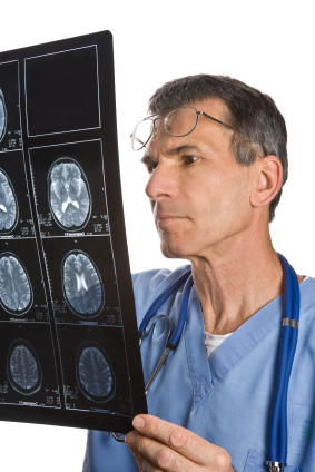 La causa del primer accidente cerebrovascular debe servir de guía para prevenir futuros