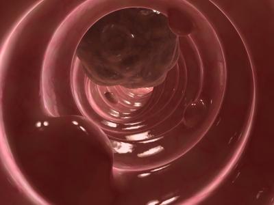 En la mayoría de gente, la detección para cáncer de colon debería empezar a los 50 años