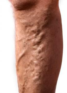 varices en las piernas hombres
