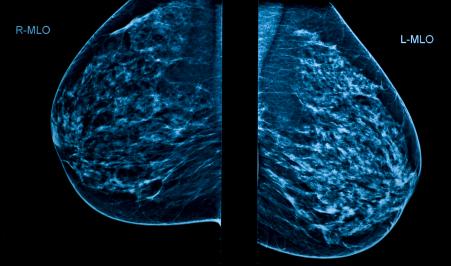 ¿Todavía no te has hecho la mamografía?