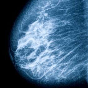 La alta densidad en los senos no se asocia con una mayor probabilidad de muerte por cáncer de mama