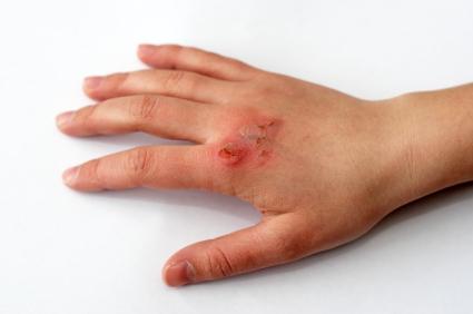 Las quemaduras: cómo evitarlas y cómo tratarlas