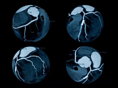La presencia de hierro en placa ateromatosa de arteria coronaria marca riesgo de ataque cardíaco, indican científicos de Mayo Clinic