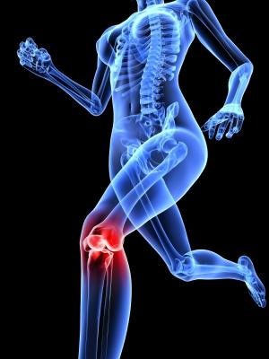 Las mujeres atletas tienen más riesgo de lesionarse el ligamento cruzado anterior (LCA)