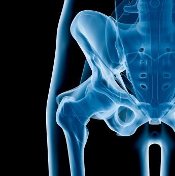 ¿Por cuánto tiempo debes tomar biofosfonatos para la osteoporosis?