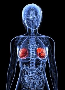 Se relaciona una proteína con la expansión del cáncer de mama al pulmón