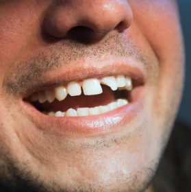 Qué debes hacer si un diente se parte por accidente