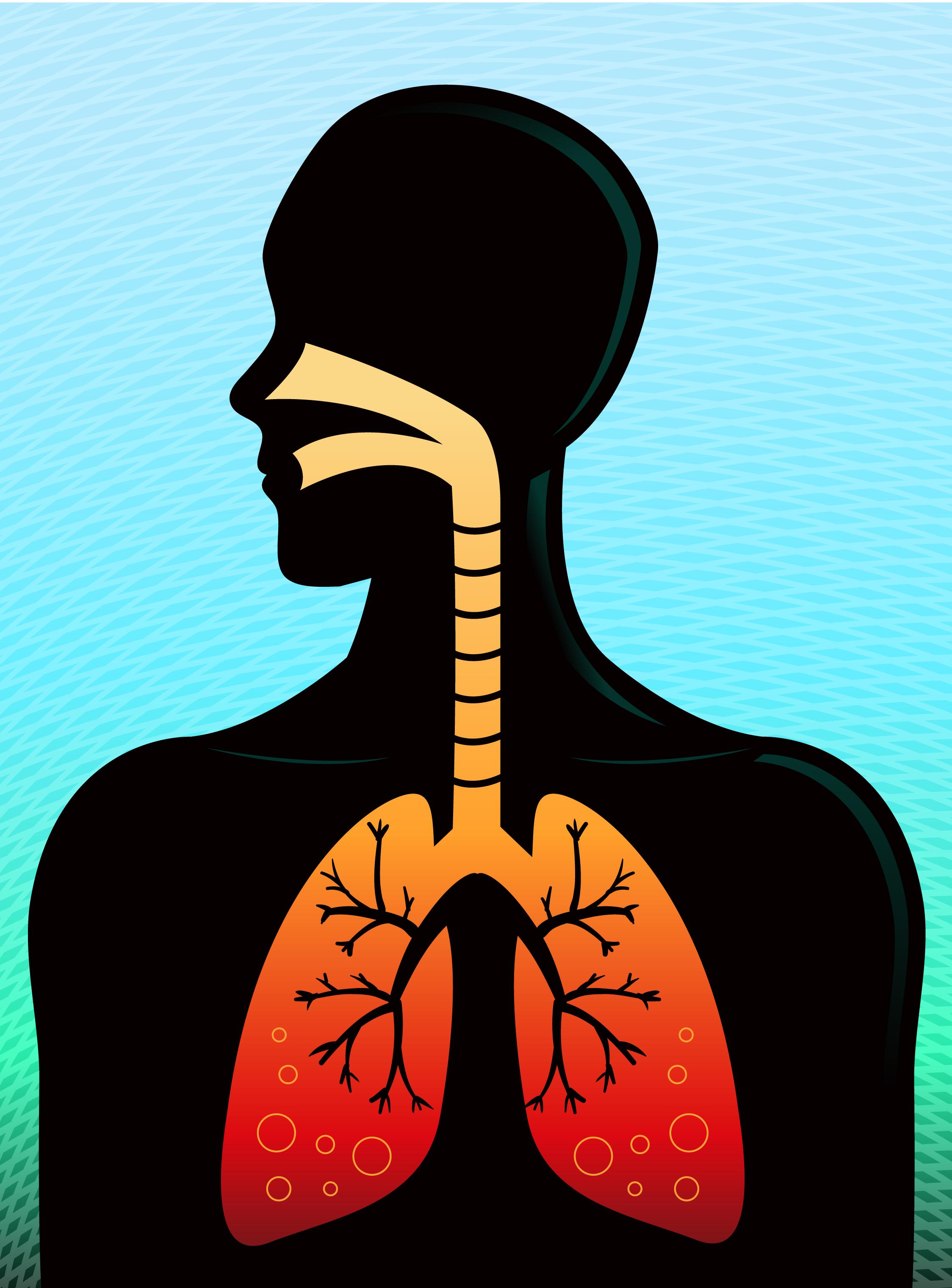 Mayo es el mes de la concientización sobre el asma