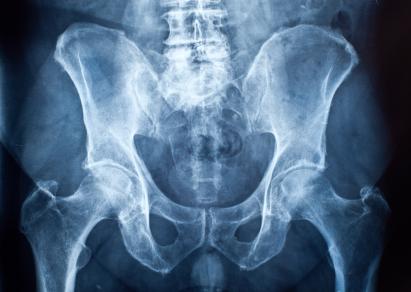 Fracturas de cadera: muchos recuperan la movilidad