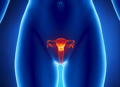¿Sabías que la endometriosis aumenta el riesgo de tres tipos de cáncer del ovario?