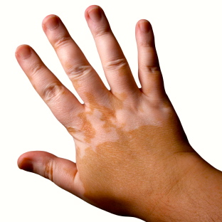 Una nueva esperanza para el tratamiento del vitiligo