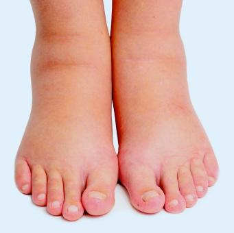 En las estres hinchazón piernas por
