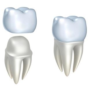¿Una corona dental en menos de una hora? Ya es posible