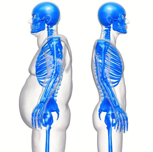La grasa abdominal: perjudicial para los huesos de los hombres
