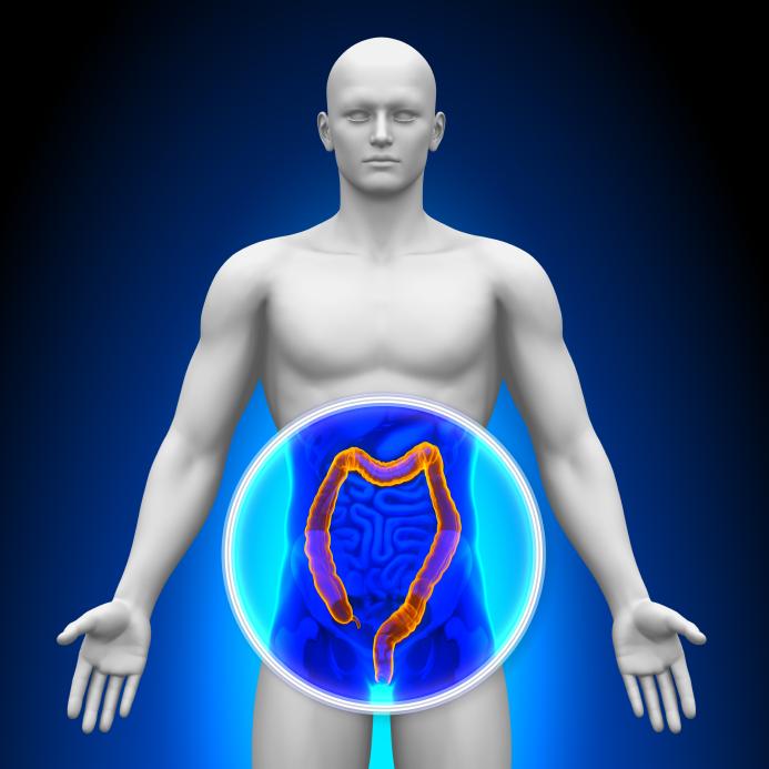 Una alimentación con alto contenido de fibra previene el avance de la diverticulosis