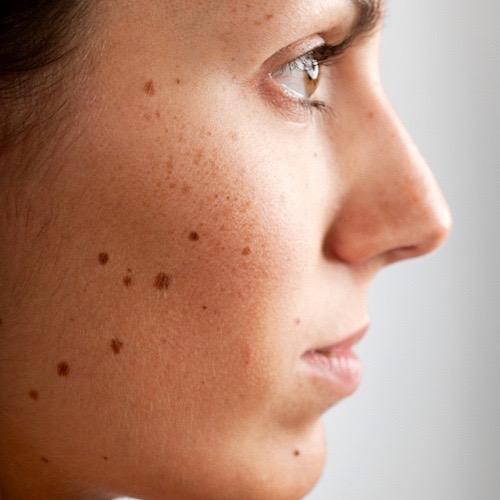 Manchas en la piel: cuando el melasma o cloasma afecta tu cutis