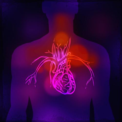 ¿Qué es la cirugía de bypass para el corazón?